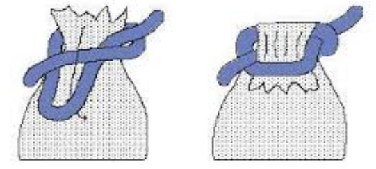Noeud de sac